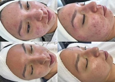 Inflamed Acne, pimples, pustules, whiteheads, blackheads, cysts, redness.