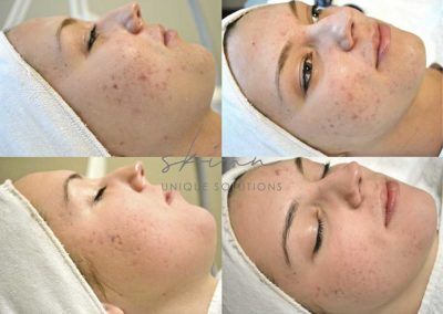 Non Inflamed Acne (close comedones and post inflammatory hyperpigmentation/ Inflamed Acne (papules, pustules and post inflammatory hyperpigmentation.