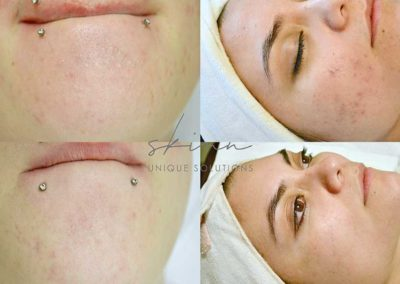 Left: Non Inflamed Acne (close comedones and post inflammatory hyperpigmentation. Right: Inflamed Acne (papules, pustules and post inflammatory hyperpigmentation.