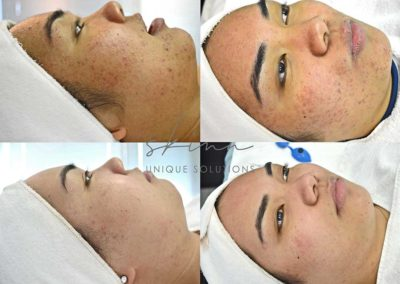 Non Inflamed Acne, Whiteheads, Blackheads, Post Inflammatory Hyperpigmentation